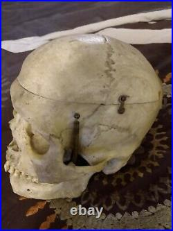 Antique Medical Skull